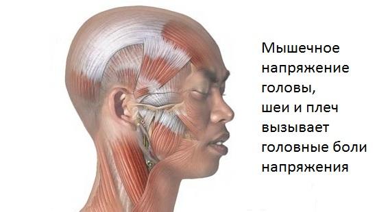 golovnye-boli-napryazheniya